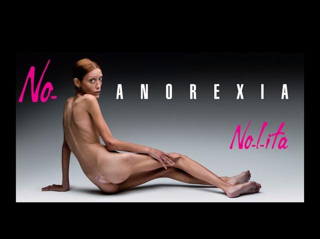 Campaña publicitaria de la marca Nolita en 2007. La modelo es Isabelle Caro y el fotógrafo Oliviero Toscani.